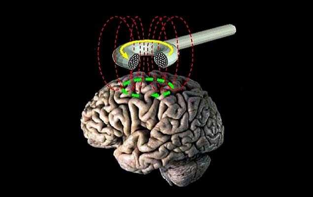 Estimulació magnètica transcranial
